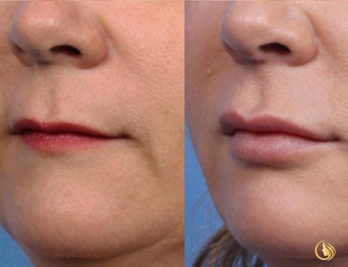 Ladora Clinic Lips
